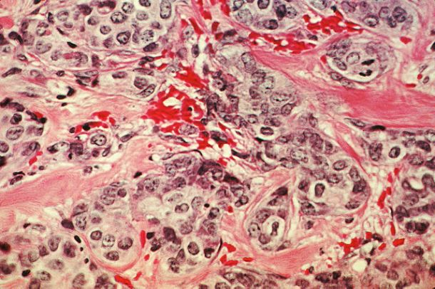 640px-Breast_cancer_cells_(2)